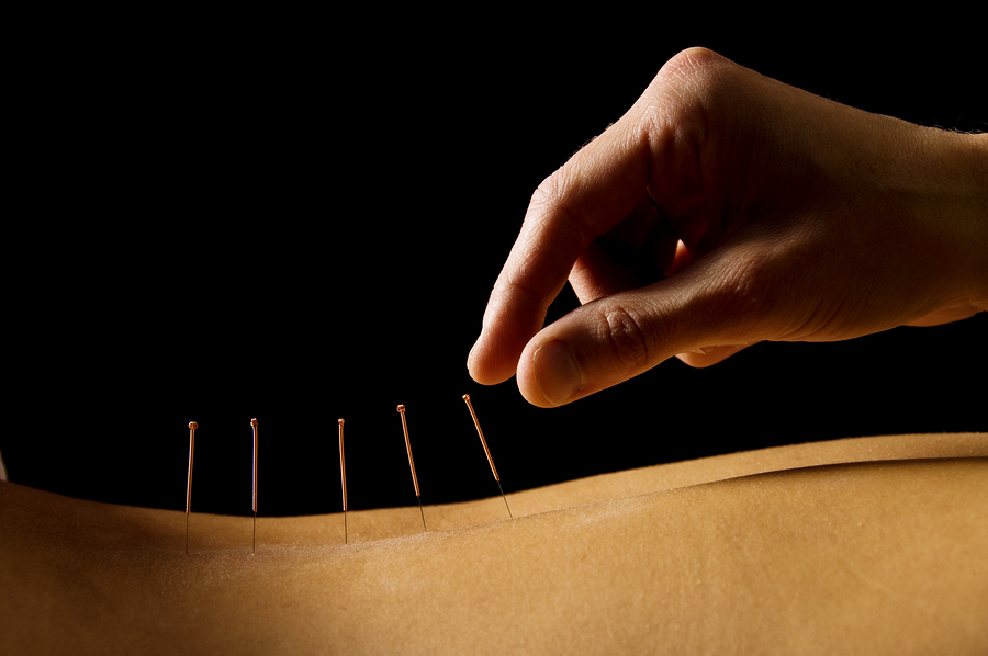 acpuncture