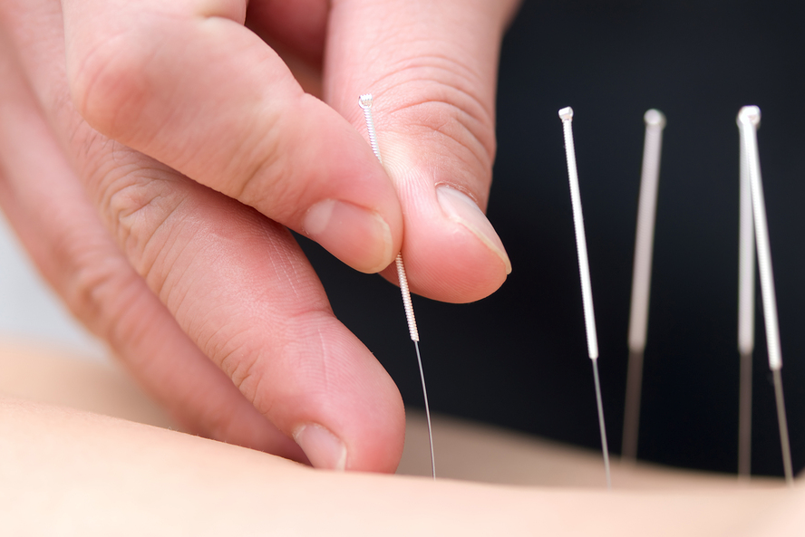 Regenerative Health Clinic Acupuncture